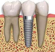 Diagram showing a Dental Implant
