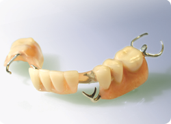 Traditional partial denture